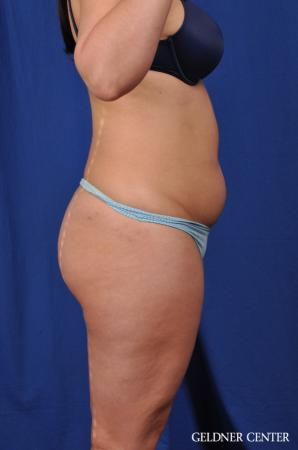 Liposuction: Patient 22 - Before Image 3