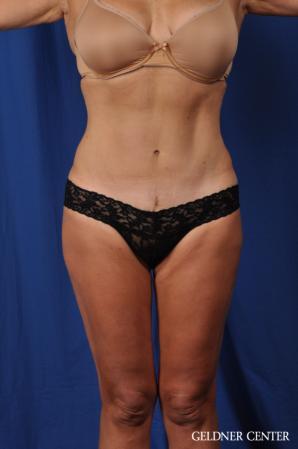 Liposuction: Patient 43 - After 1