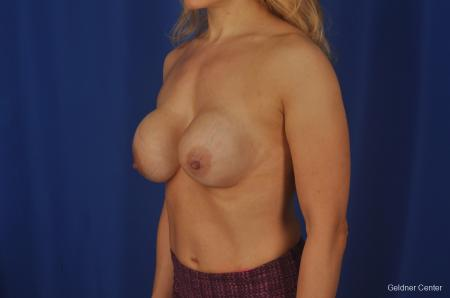 Chicago Complex Breast Augmentation 2073 - Before and After Image 4