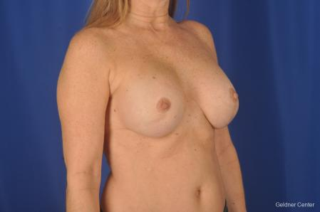 Breast Augmentation: Patient 158 - After Image 2