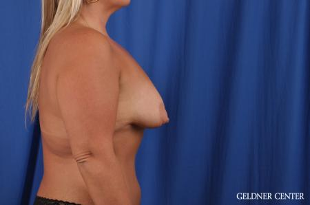Breast Augmentation: Patient 143 - Before Image 2