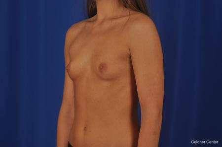 Breast Augmentation Streeterville, Chicago 3231 - Before and After Image 4