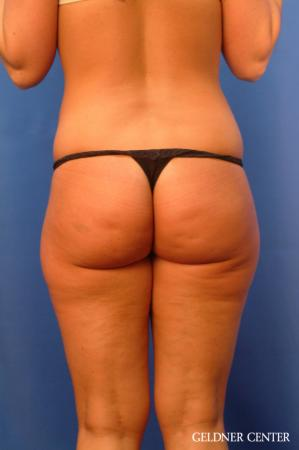 Vaser lipo patient 2624 before and after photos - Before Image 4