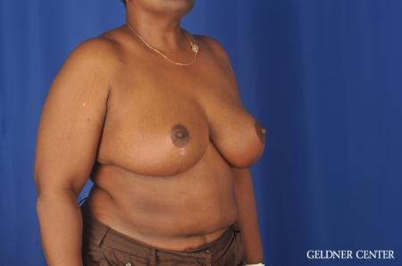 Chicago Breast Reduction 11871 -  After Image 2