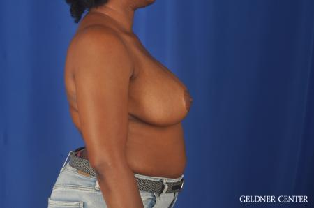 Breast Reduction: Patient 24 - After Image 3