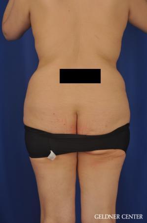 VASER® Lipo: Patient 13 - Before Image 4