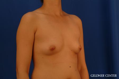 Breast Augmentation: Patient 177 - Before Image 2