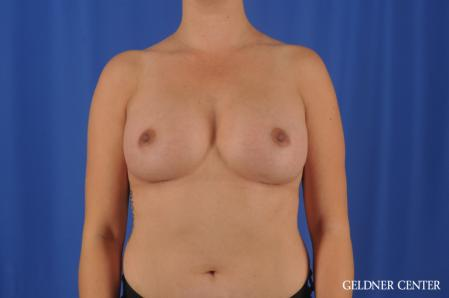 Breast Augmentation: Patient 180 - After Image 1