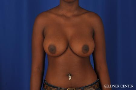 Breast Augmentation Hinsdale, Chicago 4001 -  After Image 1