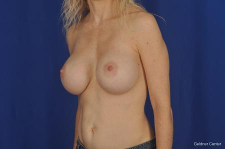 Breast Augmentation Lake Shore Dr, Chicago 2309 -  After Image 3