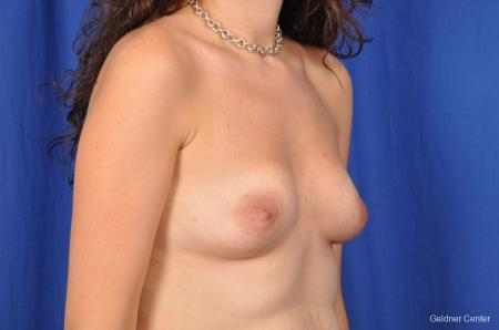 Breast Augmentation Streeterville, Chicago 2370 - Before Image 3