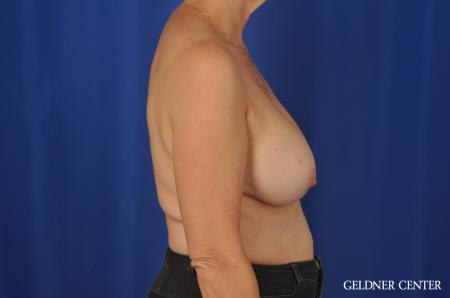 Chicago Breast Augmentation 4285 - Before Image 3