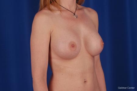 Chicago Breast Augmentation 2634 -  After Image 3