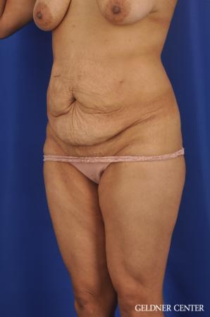 Tummy Tuck: Patient 33 - Before and After Image 4