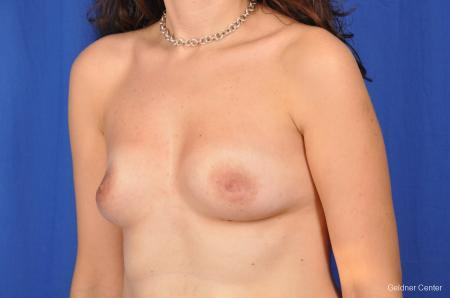 Breast Augmentation Streeterville, Chicago 2370 - Before and After Image 4