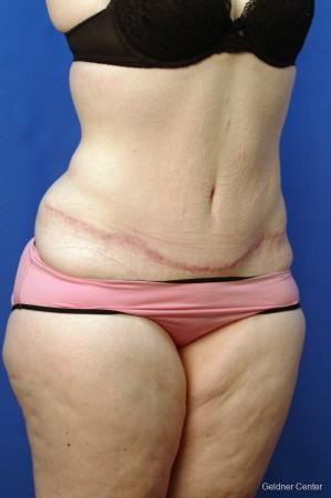 Tummy Tuck: Patient 10 - After Image 2