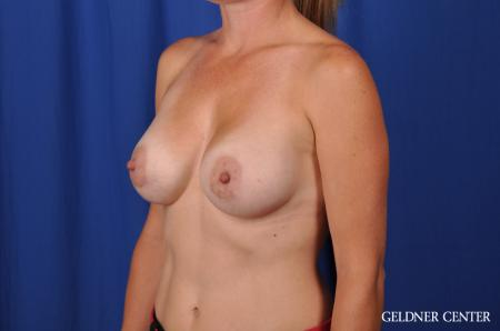 Breast Augmentation Hinsdale, Chicago 5580 -  After Image 4