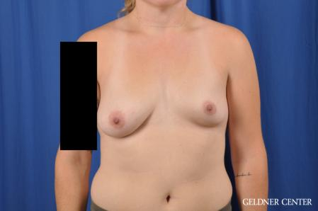 Breast Augmentation: Patient 178 - Before Image 1