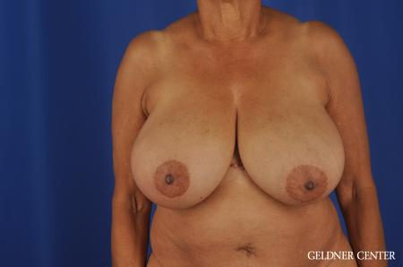 Breast Reduction Streeterville, Chicago 6650 - Before Image 1