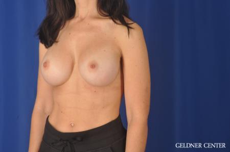 Complex Breast Augmentation: Patient 33 - After Image 4