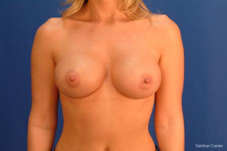 Breast Augmentation Streeterville, Chicago 2425 -  After Image 1