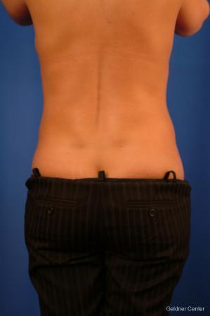 Liposuction: Patient 17 - After Image 2