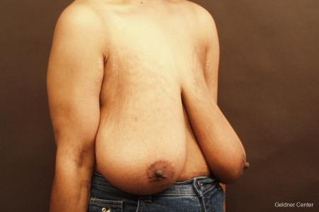 Breast Reduction Hinsdale 2440 - Before Image 3