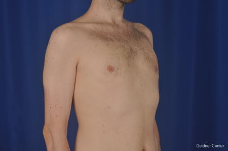 Gynecomastia: Patient 3 - After Image 3