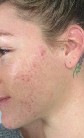 SkinPen®: Patient 6 - Before 1