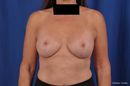 Complex Breast Augmentation: Patient 35 - After Image 1