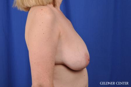 Breast Augmentation: Patient 167 - Before Image 3