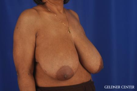 Breast Reduction: Patient 35 - Before Image 2