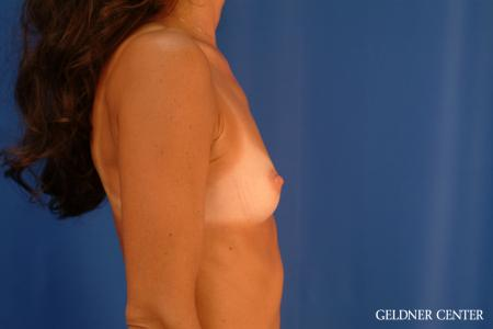 Breast Augmentation: Patient 113 - Before Image 3