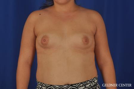 Breast Augmentation Hinsdale, Chicago 5466 - Before Image 1