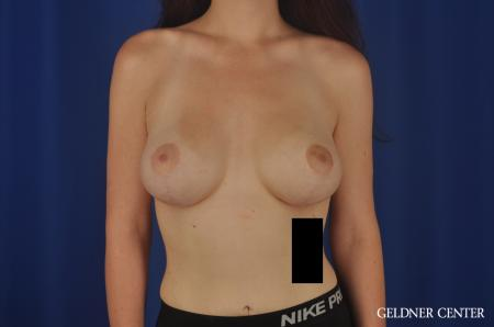 Breast Augmentation Streeterville, Chicago 5547 -  After 1