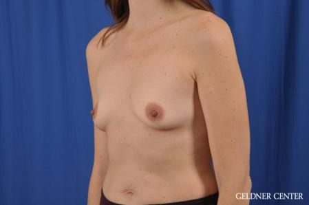 Breast Augmentation: Patient 151 - Before and After Image 4