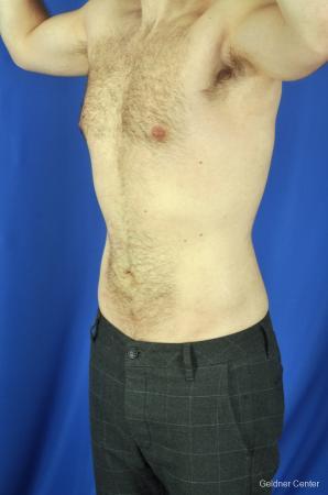 Liposuction For Men: Patient 3 - After Image 5