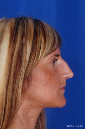 Rhinoplasty: Patient 5 - Before Image 3