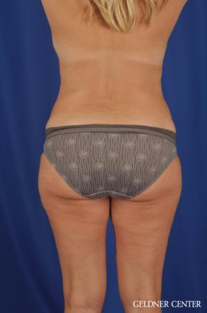 Lipoabdominoplasty: Patient 6 - After Image 4