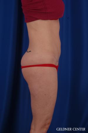 Tummy Tuck: Patient 36 - After Image 3