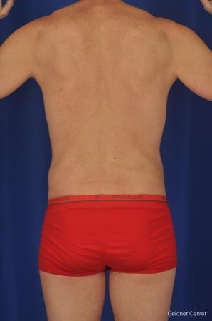 Liposuction For Men: Patient 2 - After Image 4