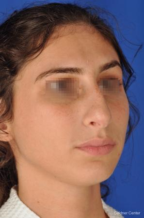 Rhinoplasty: Patient 4 - Before Image 2