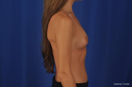 Breast Augmentation Hinsdale, Chicago 2373 - Before Image 2