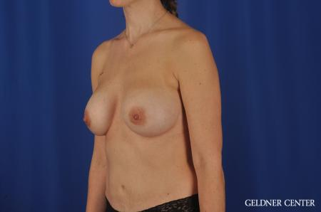 Chicago Breast Augmentation 4002 -  After Image 3