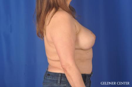 Breast Lift Hinsdale, Chicago 11863 -  After Image 3