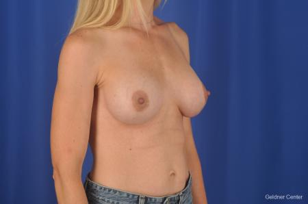 Chicago Breast Augmentation 6653 -  After Image 2