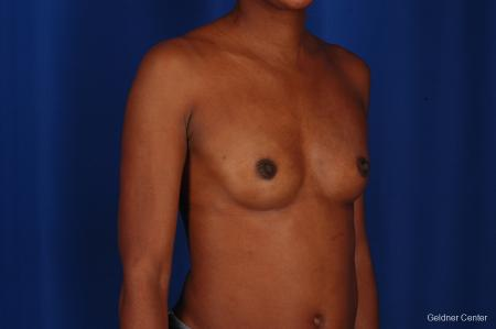 Chicago Breast Augmentation 2293 - Before Image 3