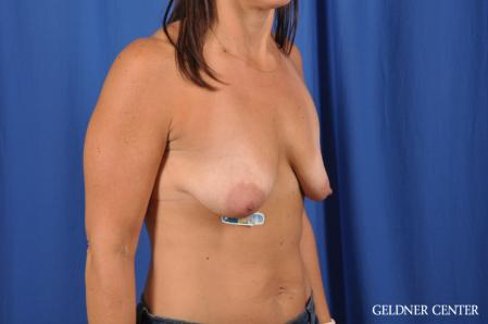 Breast Lift: Patient 42 - Before Image 3