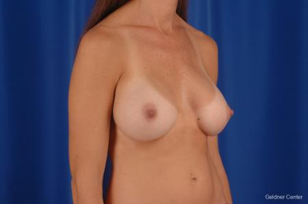 Chicago Breast Augmentation 2294 -  After Image 3