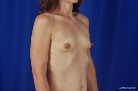 Chicago Breast Augmentation Natrelle Smooth Gel Implants 2067 - Before Image 3
